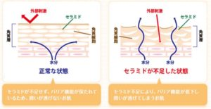 セラミド図