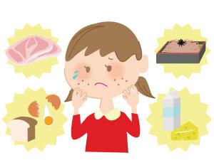 食品アレルギー