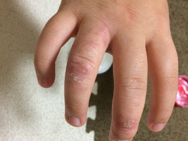 ファムズベビー使用前の指
