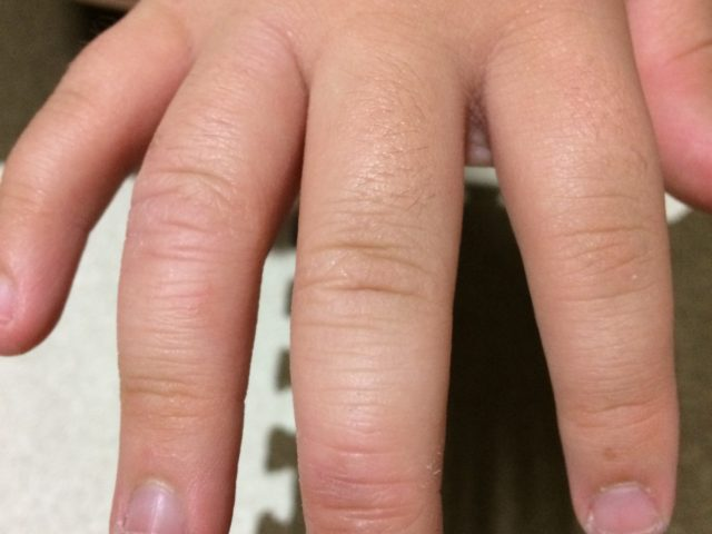 ファムズベビー使用後一週間目の指